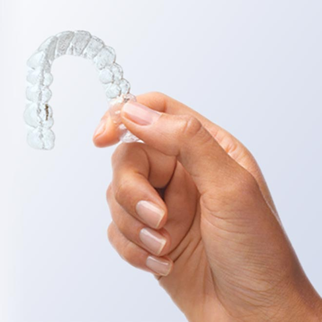 Was ist Invisalign?